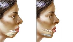 Chin Augmentation or Mentoplasty is a type of plastic surgery, performed to reshape or increase the size of the chin, so that the appearance of the face is balanced . Implantation is performed to add volume to the chin, whereas bone reshaping is done to reduce the size of the chin. It costs around USD 2500 in Germany,while the procedure costs about USD 740 in Thailand. To get a free quote for an affordable treatment, visit…