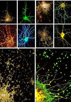 """""""Everything in the universe comes into being from a single unifying underlying organizational structure and gives rise to the self-similar scalar fractal organization of all living systems.  We see in the photo below how the structure of the neurons in our brain look strikingly similar to the structure of modern cities which is as well strikingly similar to how galactic structures organized themselves in the early universe."""" https://www.facebook.com/TheResonanceProject"""