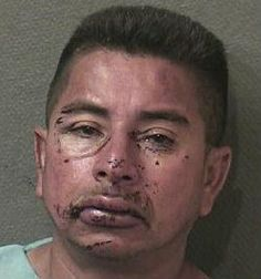 Jose Flores: Shooting At Cops Plus Refusing Their Orders Equals A Face Like This - Hair Balls