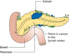 MCQs – Pancreatic Cancer