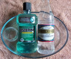 Listerine and vinegar, foot soak, removes dry skin, softens cuticles, whitens nails, DIY, easy, foot care