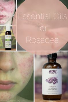 DIY Rosacea Remedies ~ Learn about 9 Essential Oil Based Recipes for treating Rosacea and preventing future flare ups. Facial Treatment, Natural Treatments, Skin Treatments, Rosacea Remedies, Acne Rosacea, Red Face Remedies, Natural Remedies For Rosacea, Skin Care, Essential Oils