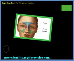 Home Remedies For Sinus Allergies 175650 - Cure Sinusitis