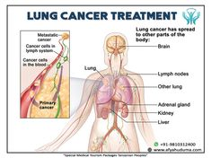 Immunotherapy Treatment Can Improve Survival for Subset of Lung Cancer Patients Lung Cancer Treatment, Kidney Cancer, Medicine Journal, Medical News, Health Articles, Lunges, Weight Loss, Survival, Tanzania