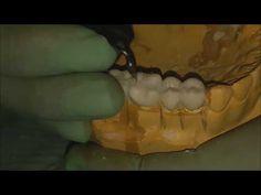 Tallado en Cera Premolares y molares - YouTube