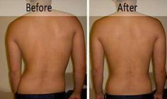 Scoliosis correction