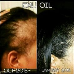 Say Hello to EMU Oil Edge REGROW! In box me for more information.Together we can bring those edges and bald spots bsck to life Thinning Edges, Regrow Hair Naturally, Grow Natural Hair Faster, Emu Oil, Bald Hair, Male Pattern Baldness, Home Remedies For Hair, Hair Growth Tips, Hair Repair