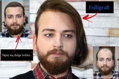 www.novahair.com.tr #novahair #hair #folligraft #protezsac #sacmodelleri