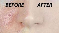 Get Rid of All Open Pores in Just 3 Days