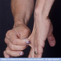 People with Ehlers-Danlos syndrome often have very stretchy skin, more so than normal.   http://www.mayoclinic.com/health/medical/IM02267
