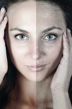 There are two factors that affect the aging of the skin: Intrinsic and extrinsic. Let's talk about extrinsic or external aging. This is the natural process of biological aging compiled with exterior causes such as sun exposure, air pollution, smoking, lifestyle, cosmetics and other allergens and lack of care. It is extrinsic aging that affects …
