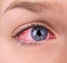 Hiperopiás látásprobléma Mi a hiperópia?