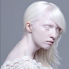 Chinese Albino Model