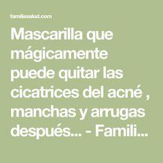 Mascarilla que mágicamente puede quitar las cicatrices del acné , manchas y arrugas después... - FamiliaSalud.com