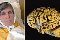 Goodbye to Alzheimer's thanks to this; Alzheimer's Brain, Brain Health, Good Healthy Recipes, Healthy Life, Health And Wellness, Health Fitness, Alzheimer's And Dementia, Cure Diabetes, Alzheimers