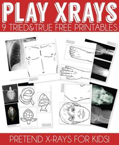 Free printables that work just like real x-rays! Perfect for kids!