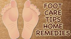 Watch This Video Ambrosial Home Remedies Swollen Feet Ideas. Inconceivable Home Remedies Swollen Feet Ideas. Foot Remedies, Headache Remedies, Skin Care Remedies, Natural Remedies, Cold And Cough Remedies, Toenail Fungus Remedies, Feet Nails, Toenails