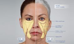 Facial Structure: Understanding how the Face Ages - SF Bay Cosmetic Dermatology Medical Group Facial Anatomy, Head Anatomy, Face Age, Facial Bones, Aesthetic Eyes, Aesthetic Clinic, Facial Aesthetics, Facial Muscles, Human Body