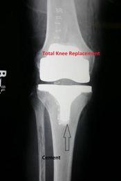 total knee replacement precautions