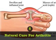 Natural Cure For Arthritis