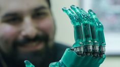 Handsmith: Changing an Industry, and Lives, with 3D Printed Prosthetics