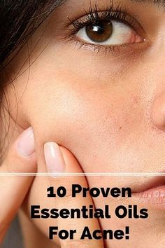 10 Proven Essential Oils For Acne: http://karmaroma.com/use-essential-oils-acne-10-proven-essental-oils/ski Pinned for you by https://organicaromas.com