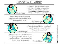 Stages Of Labor OB nursing Newborn Nursing, Child Nursing, Ob Nursing, Nursing Notes, Nursing Students, Maternity Nursing, Nursing Programs, Medical Students, Nursing Blogs