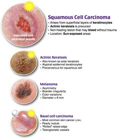 Squamous Cell Carcinoma vs. Actinic Keratosis vs. Melanoma vs. Basal Cell Carcinoma Rosh Review