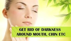 Natural Tips for Skin Darkness around Mouth, Chin etc that makes the complexion look darker. These natural remedies will cure the darkness and spots Pimples On Chin, Pimples Under The Skin, How To Get Rid Of Pimples, Dark Skin Around Mouth, Darkness Around Mouth, Dry Skincare, Tan Removal