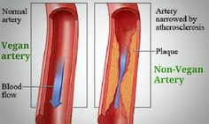 Everybody is afraid of getting a heart attack. There are no exemptions. However, knowing the reasons for it and avoiding them may relieve that fear. Succumbing to a heart attack is always due to clogged coronary arteries. So, it is crucial to keep those arteries clean and unclogged. But what is the best way to make this happen?