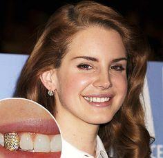 Lana del Ray fogékszer. http://www.merjmosolyogni.hu/sztarok-aranyfoggal-fogekszerrel-divatos-hobort.mosoly