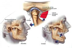"""""""The Causes Of TMD: - You feel pain or tenderness in the area in front of your ear, especially when you chew, speak or open your mouth wide - Your jaw becomes stuck open or closed, or feels stuck - You have spasms in your facial muscles. They may make it difficult to open your mouth or make it feel as though your teeth don't meet normally. - You hear clicking, popping or cracking sounds or feel a grating sensation in your jaw when you open or close your mouth - You get headaches that tend to…"""