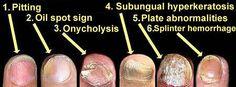 Psoriasis vulgariste klinik belirtiler - 3