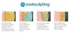 NutriçãoGlobalOm: Coolsculpting-  Eliminação de gordura localizada p...
