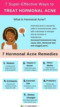 7 Super-Effective Ways to Treat Your Hormonal Acne – Of Sun and Earth Try these 7 natural and effective home remedies for your other unwanted monthly visitor. Get rid of hormonal acne and keep it away with these DIY skincare treatments. Back Acne Treatment, Natural Acne Treatment, Skin Care Treatments, Overnight Acne Treatment, Homemade Acne Treatment, Acne Skin, Acne Scars, Oily Skin, Skin Care