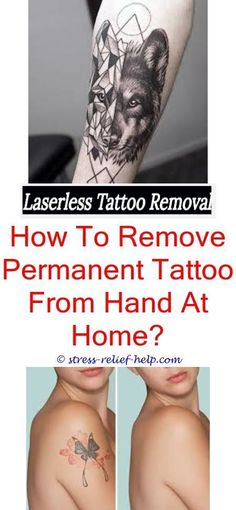 20 Best Natural Tattoo Removal images | Natural tattoo removal, At ...