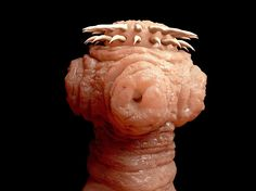A Woman Had EIGHT of These Mini-Monsters Lodged in Her Brain.