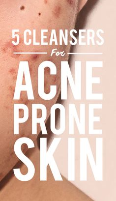 5 Cleansers You Should Use If You're Prone To Breakouts, According To To Dermatologists Acne isn't fun and it's often hard to treat. Find the products that dermatologists swear by to get rid of acne and keep it at bay at SheFinds.com!