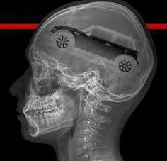 Mini on the brain