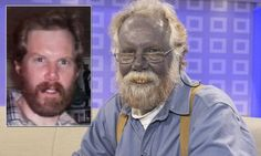 "Man turns blue after self-medicating ""Colloidal Silver"" - Check more at http://oddstuffmagazine.com/20-wtf-moments-february-24-2015.html"