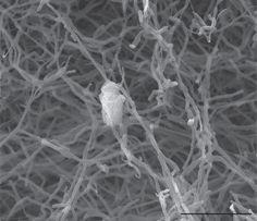 Allokutzneria multivorans [000.000.705]