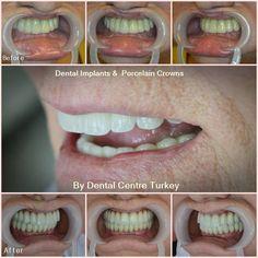 Dental Holiday Turkey - Dentist in Turkey - Dental Implants, Crowns, Veneers Porcelain Crowns, Smile Makeover, Dental Bridge, Dental Center, Smile Design, Dentist In, Dental Implants, New Set, Clinic