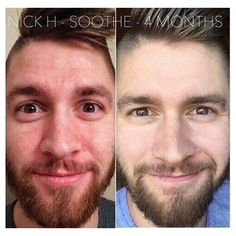 Guess what Rodan & Fields works on man skin too!! ‍♂️I know right crazy !! it might seem like I forget about you guys when I post before and afters but truth is, men have skin too and You also get 60 days to try or send it back empty bottle for a full refund..I know that easy. Message me and lets find out what's right for you!!  #RodanAndFields #WorksforMenToo #NumberOneForAReason