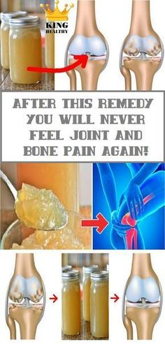 Remedies For Knee Joint Pain Scientists emphasize that the major culprit for the appearance of pain in the back, legs and joints is the improper posture. Besides improving the posture, which is the number one change that you must make,[. Natural Cure For Arthritis, Types Of Arthritis, Arthritis Hands, Rheumatoid Arthritis, Natural Headache Remedies, Natural Home Remedies, Holistic Remedies, Health Remedies, Arthritis Remedies