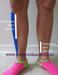 Shin splint information
