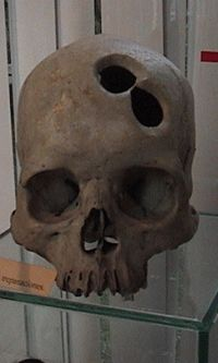 Skull with a double successful and healed trepanation, Museo Archeologico, Lima, Peru.