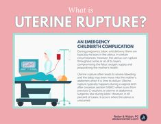 A ruptured uterus is an extremely dangerous complication that can occur during and Learn about causes, management, and more here. Postpartum Nursing, Maternity Nursing, Ob Nursing, Nursing School Notes, Medical School, Nurse Teaching, Student Midwife, Labor Nurse, Childbirth Education
