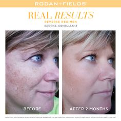 I've been using Reverse every fall, it's like a clean slate for the skin #lifechangingskincare