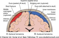 Subdural Hematoma on the right (blue)  Epidural Hematoma on the left  (red)