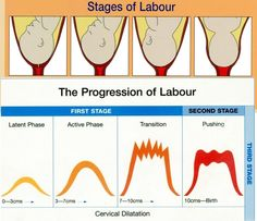Stages of Labor and Delivery | Understanding the Stages of Labour is Laborious